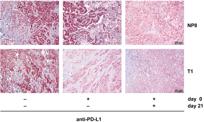 A second PD-L1 antibody treatment eliminates regrown tumors in anti-PD-L1 treated NP8 tumor mice and delays tumor regrowth in T1 tumor mice.