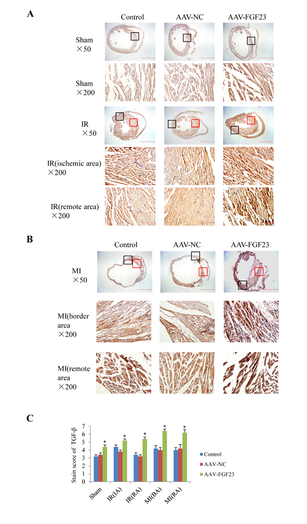 Effect of FGF23 overexpression on myocardial TGF-β expression.