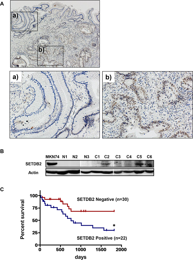 Analyses of SETDB2 protein expression in primary GC tissues.