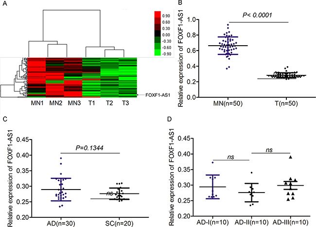 The expression of FOXF1-AS1 was significantly downregulated in lung cancer.