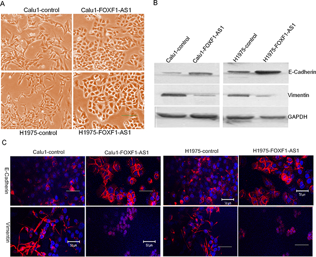 FOXF1-AS1 regulated epithelial-mesenchymal transition in lung cancer cells.
