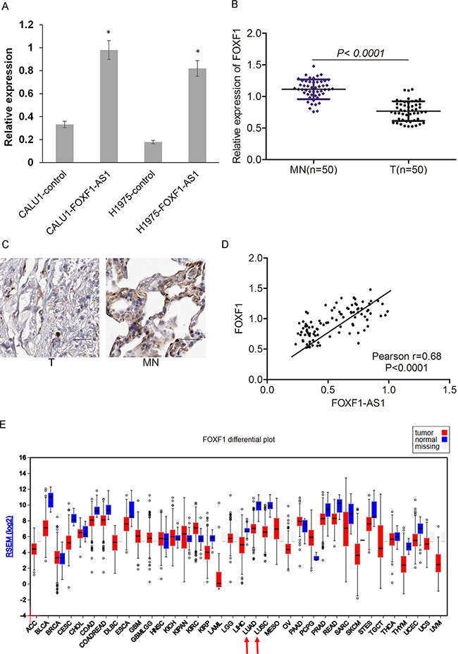 Loss of FOXF1-AS1 is correlated with downregulation of FOXF1 in lung cancer.
