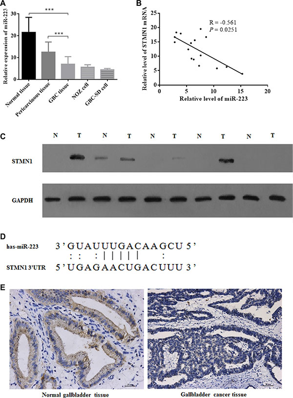 Aberrant miR-223 expression in gallbladder cancer tissue samples and correlations with STMN1 upregulation.