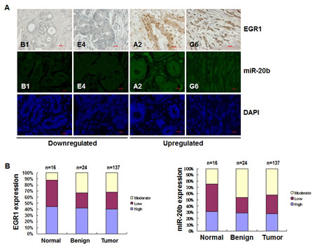 EGR1 expression is correlated with miR-20b expression in breast cancer tissues.