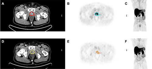 Pre- and posttherapeutic imaging example of a 66 year old patient with locally advanced prostate cancer (PSA before neoadjuvant therapy 12.63 ng/ml, Gleason score 6) before (A–C) and after neoadjuvant therapy (D–F).