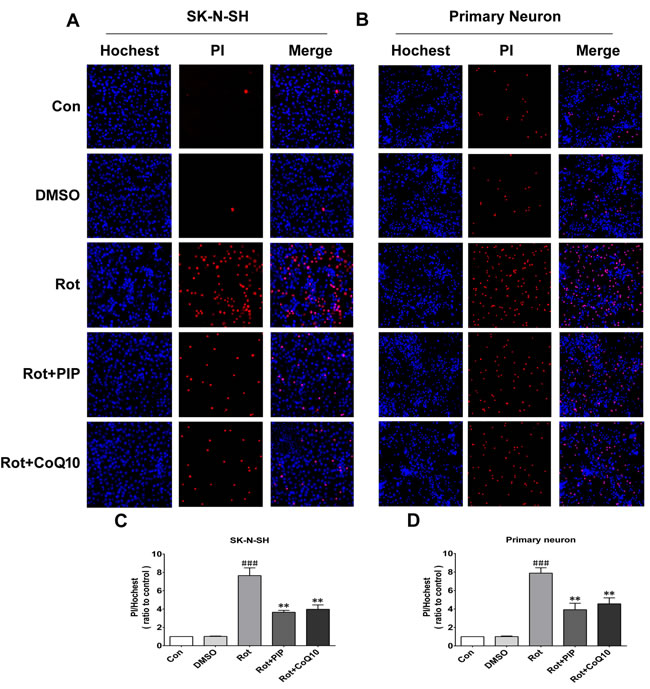 PIP reduces cell death rate in SK-N-SH cells and primary neurons treated with rotenone.