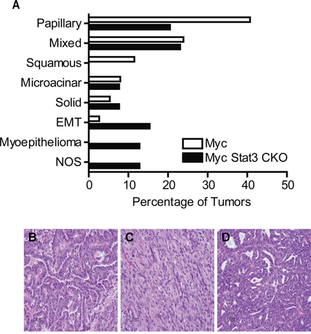 Loss of Stat3 alters tumor histology.