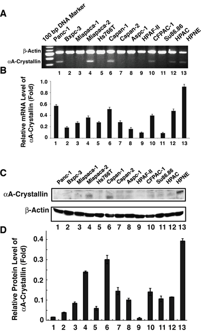 Detection of αA-crystallin mRNA and protein expression in pancreatic cancer cell lines.