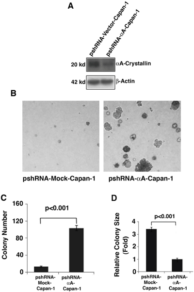 Effects of αA-crystallin silence on cell anchorage-independent growth.