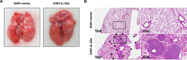 IL-32α expression affects in vivo lung metastasis.