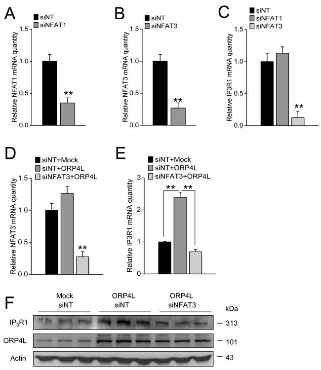 ORP4L maintains IP3R1 expression via regulating NFAT3.
