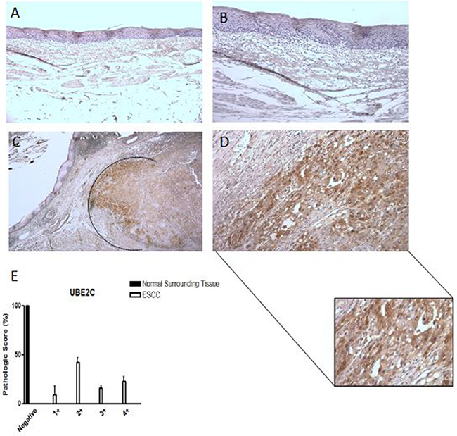 UBE2C protein expression pattern in esophageal squamous cell carcinomas (ESCC).