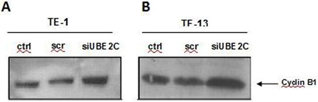 UBE2C silencing leads to upregulation of Cyclin B1 in ESCC cell lines.