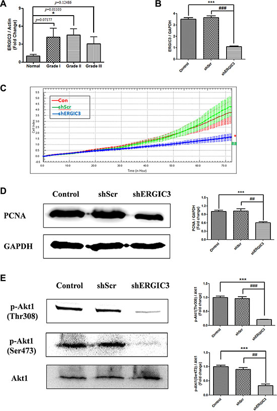 ERGIC3 expression in tumor tissues and effect of shERGIC3 downregulation.
