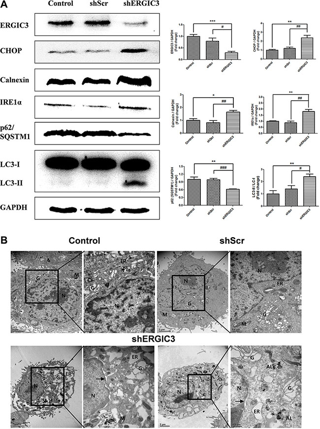 Suppression of ERGIC3 induces ER stress-induced autophagy in A549 cells.
