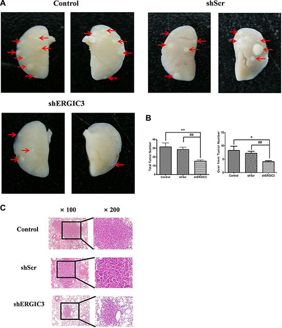 shERGIC3 suppresses lung tumorigenesis in K-rasLA1 mice.