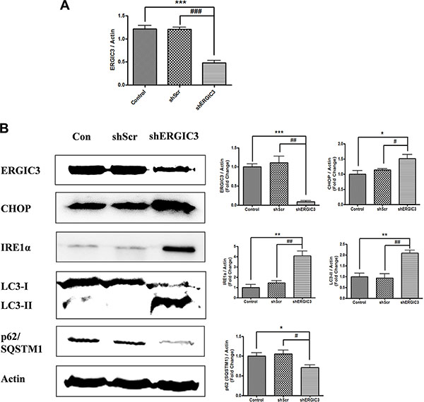 Aerosol delivery of shERGIC3 triggers ER stress-induced autophagy in K-rasLA1 mice.