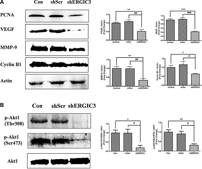 Aerosol delivery of shERGIC3 suppresses proliferation, angiogenesis and Akt1 activation in K-rasLA1 mice.