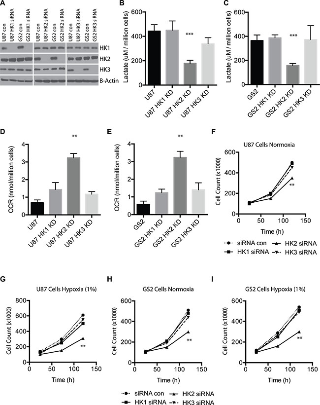 HK2 but not HK1 or HK3 impact tumor metabolism and cell growth.