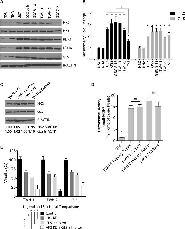 Loss of HK2 sensitizes cells to GLS inhibition.