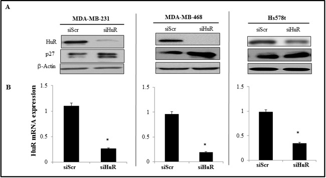 Effect of HuR silencing on the expression of HuR protein and mRNA.