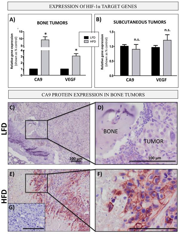 Bone marrow adiposity enhances HIF-1α signaling in PCa cells