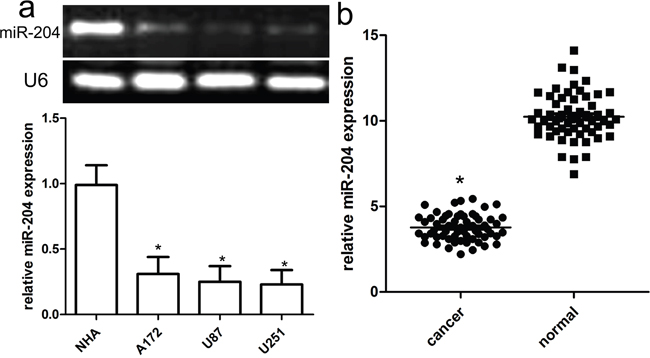 Reduced miR-204 expression in GBM cell lines and tissues.