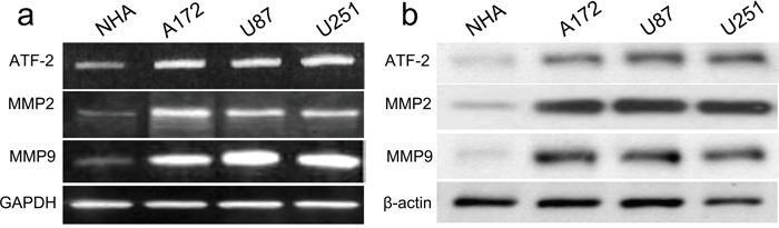 ATF2, MMP2 and MMP9 were up-regulated in GBM cell lines and NHA cells.