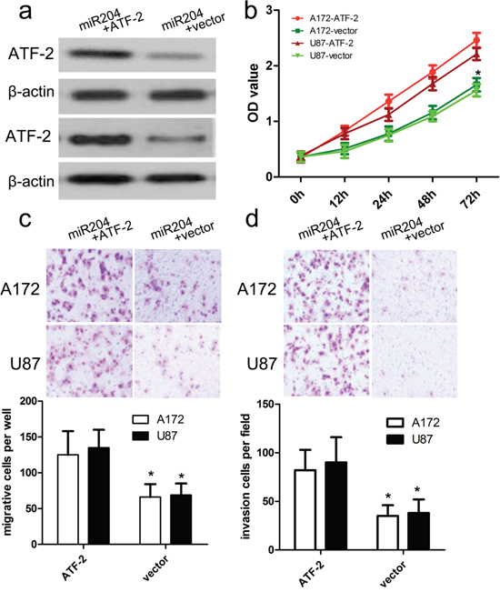ATF2 overexpression reversed the inhibitory effect of miR-204 on GBM cell proliferation, migration and invasion.