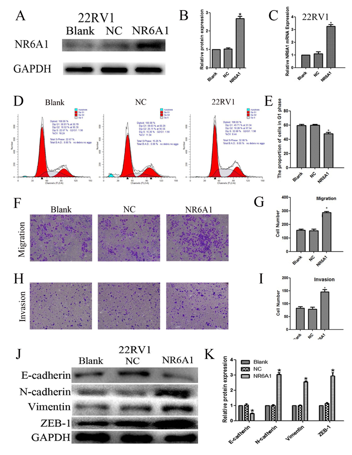 (A)(B) NR6A1 protein expression of transfection with NR6A1 lentivirus or NC in 22RV1.