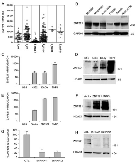 Expression of ZNF521 in human medulloblastomas and modulation of its expression of in DAOY medulloblastoma cells.