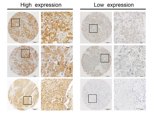 Identification of miR-454 in primary tumors by