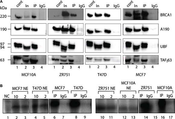Active components of Pol-I transcription machinery co-immunoprecipitate with BRCA1.