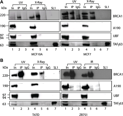 BRCA1 interactions with Pol-I transcriptional machinery affected by DNA damage.