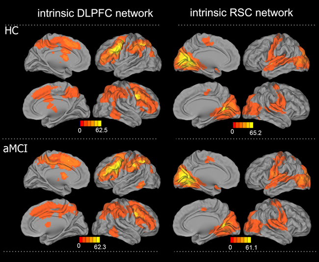 Patterns of intrinsic functional connectivity in the DLPFC and RSC networks in the aMCI and HC groups.