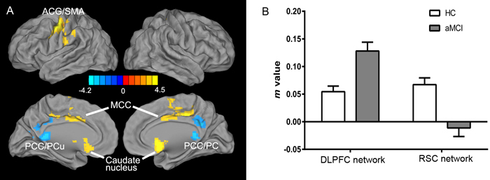 Differential intrinsic functional connectivities in the DLPFC and RSC networks in the aMCI group compared to the HC group (two-sample
