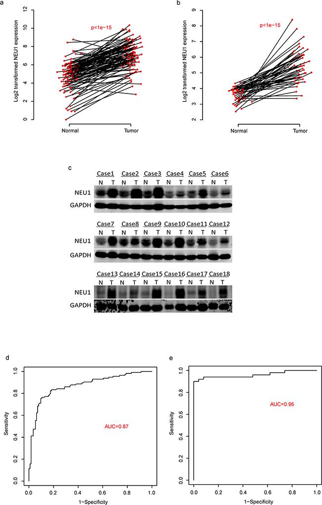 The diagnostic effect of NEU1 in HCC.