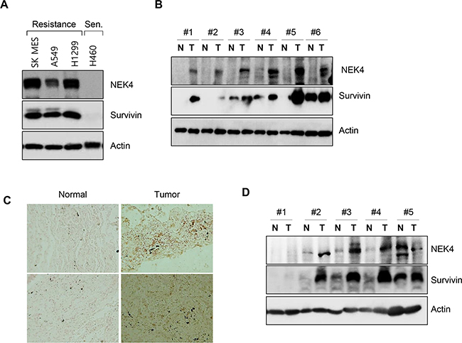 NEK4 expression is decreased in human lung and colon cancer tissues.