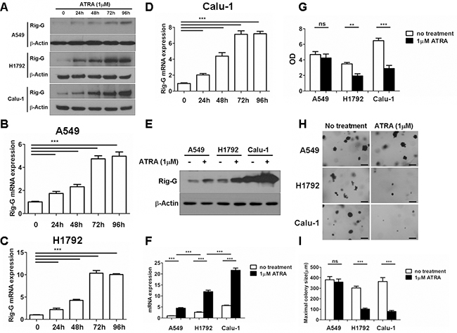 ATRA upregulates Rig-G expression and inhibits the growth of lung cancer cells in vitro.