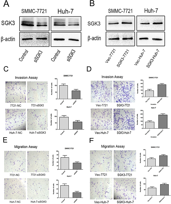 SGK3 promotes cell migration and invasive potential.