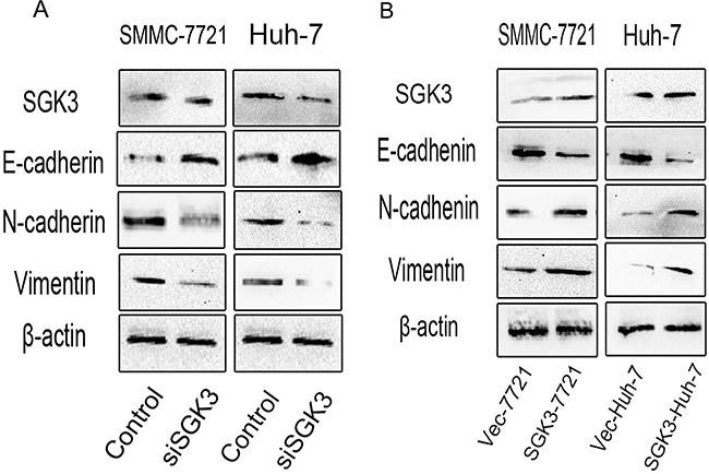 SGK3 regulates the expression of epithelial and mesenchymal markers.