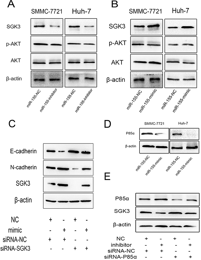 miR-155 stimulates EMT through by targeting P85α to activate SGK3.