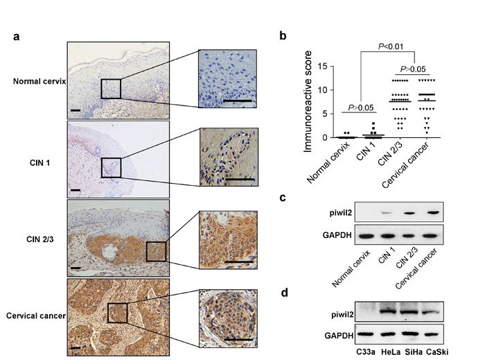 Characteristic Piwil2 expression in cervical cancer and its precursor stages.