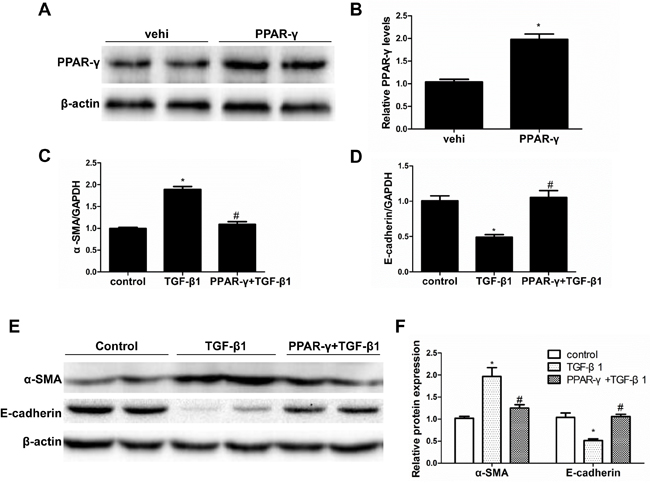 PPAR-γ overexpression blocked TGF-β1-induced phenotypic alteration.