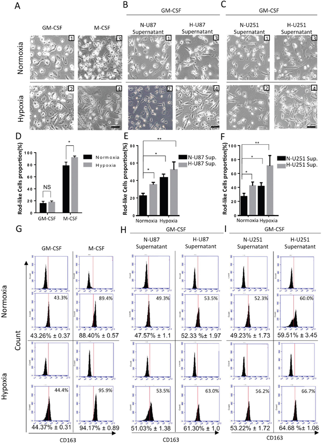 Changes in cell morphology and surface markers in HMDMs exposed to different hypoxic conditions.