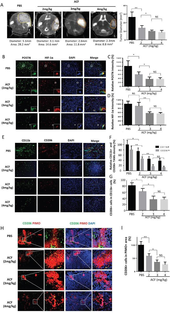 ACF treatment limits glioma progression and M2 type TAM infiltration.