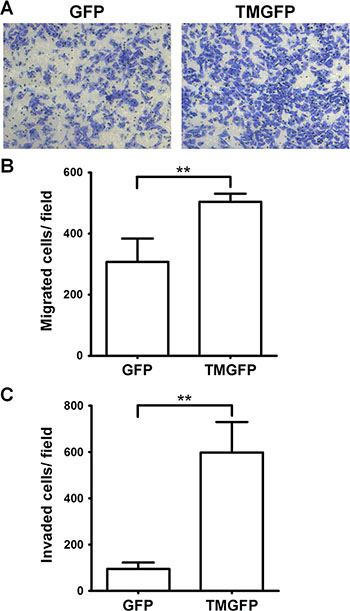 Exogenous expression of TM enhances cell migration and invasion.