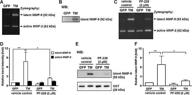 Exogenous expression of TM enhances MMP-9 production.