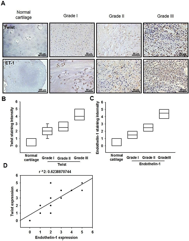 The correlation of ET-1, Twist and tumor stages in human chondrosarcoma tissues.