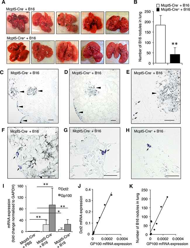 Reduced melanoma colonization in lungs from Mcpt5-Cre+ vs. Mcpt5-Cre- mice.